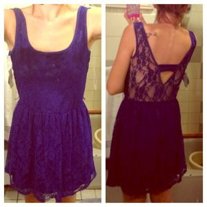 Dresses & Skirts - Nwt gorgeous blue lace dress