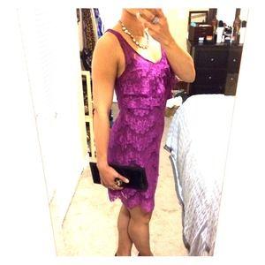 🎈HP🎈Free People lace dress