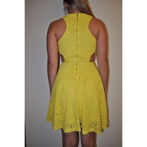 Dresses - Yellow Lace Cutout Spring Dress