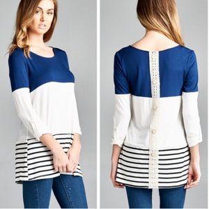 •striped lace back tunic•
