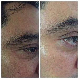Juventud Botox Like The Alternative to Injections Boutique