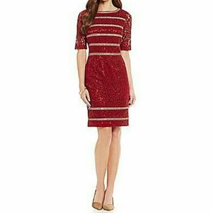 ANTONIO MELANI Dresses & Skirts - 🚨SALE🚨ANTONIO MELANI LACE DRESS