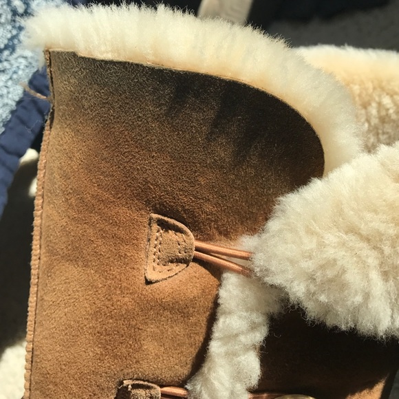 how to fix ugg boots buttons