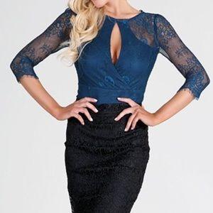 Tops - Teal Blue Lace Bodysuit