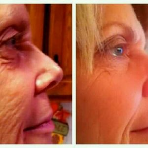 Other - 3 day trial of the famous stem cell serum!!!