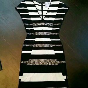 Herve Leger Dresses & Skirts - RARE! HERVE LEGER DRESS LACE S