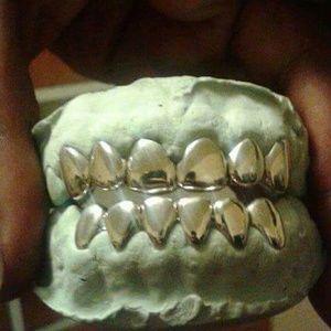 6 Permanent Look Custom Gold Grillz aka Gold Teeth Boutique