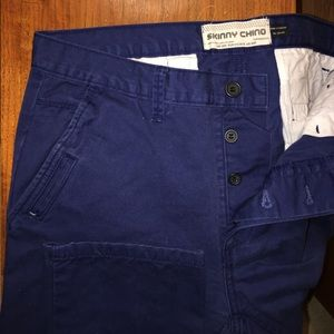 Topman Other - Topman skinny button fly chinos