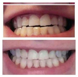 Other - Whitening tooth paste