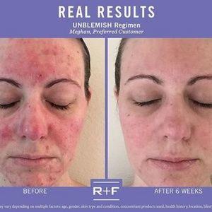 Rodan + Fields Unblemish for Acne