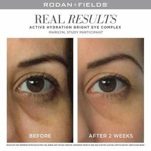 Rodan And Fields Other Active Hydration Bright Eye Poshmark