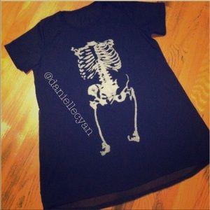 Skinny X-ray blouse mini dress in black (s,xs)