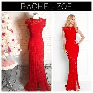 Rachel Zoe Estelle Cut-Out Back Dress Size: 2 & 4